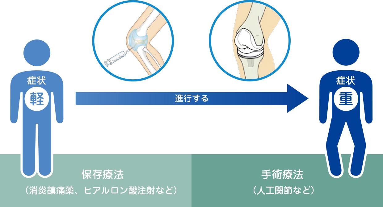 膝 注射 ヒアルロン 酸